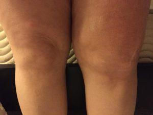 Just a bit swollen.