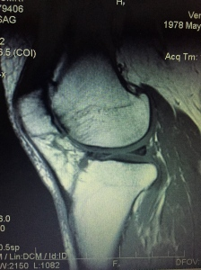 My MRI. I can make out the major structures. Glad to know my femur's still there.